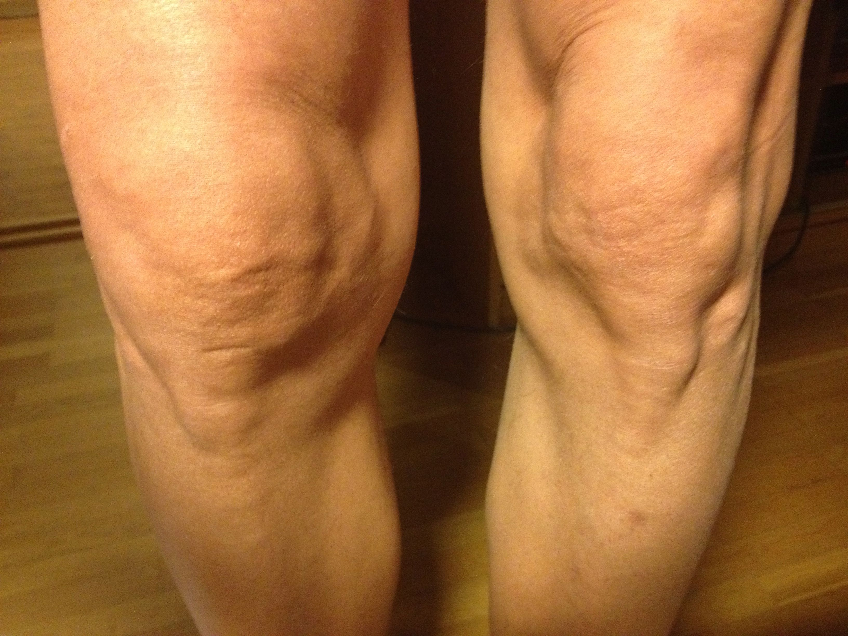 svullet knä utan smärta